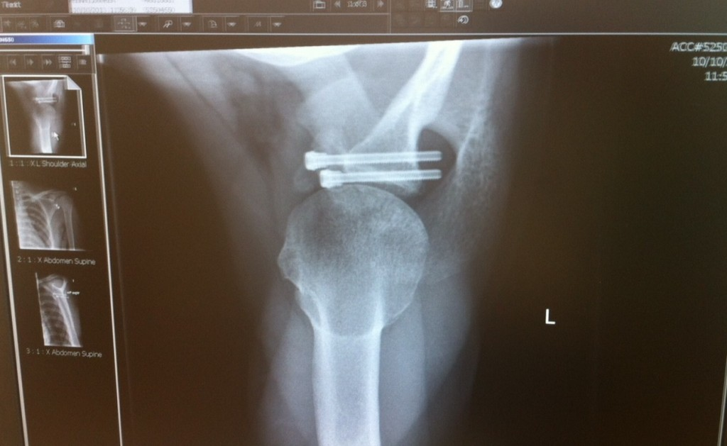 My left shoulder showing the screws holding new bone in place after operation
